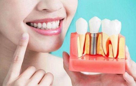 Имплантация зубов: сколько по времени занимает процесс, из чего лучше ставить импланты и как их вставляют, какие правила нужно соблюдать в период реабилитации?