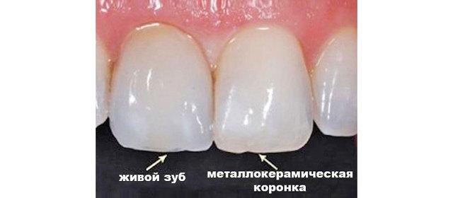 Что лучше — пломба или коронка на зуб депульпированный жевательный, каковы различия и противопоказания?