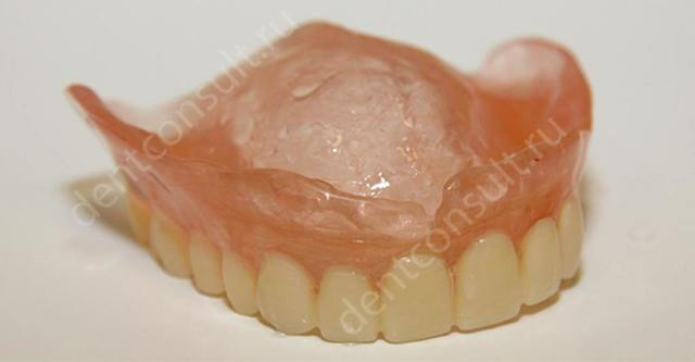 Какой зубной протез лучше поставить при полном отсутствии зубов: что можно использовать, если их нет на верхней челюсти, каковы виды съемных и иных конструкций?