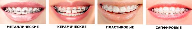 Брекеты на зубах: как ставят взрослым и малышам и зачем, в каких случаях устанавливают и когда одевают детям, что нужно сделать перед этим, как крепятся, на сколько?