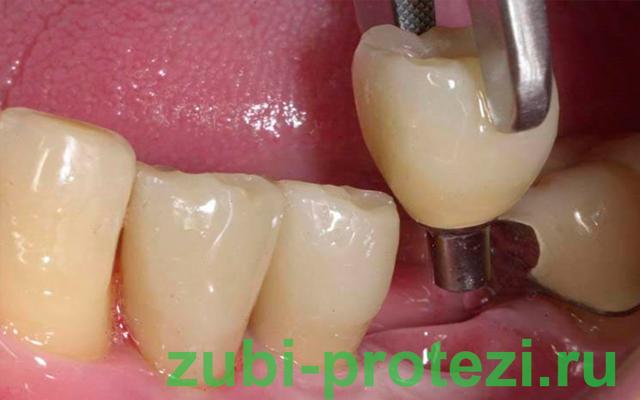 Отвалилась коронка с зуба: что делать, если выпал микропротез, и какие причины могли привести к этому, а также как ухаживать за конструкцией, чтобы она не слетела?
