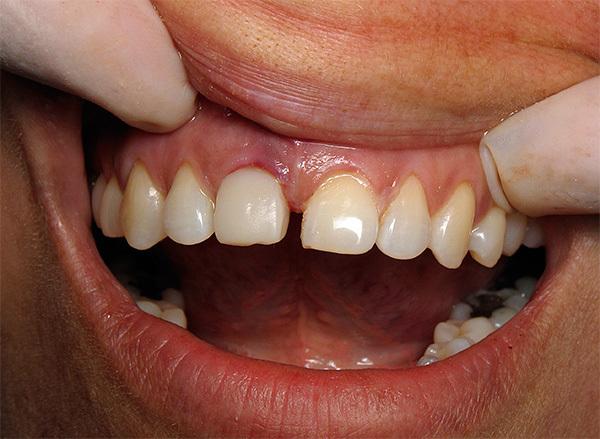 Какие импланты ставить лучше на передние зубы верхней челюсти, и противопоказания, этапы процедуры, возможные побочные эффекты