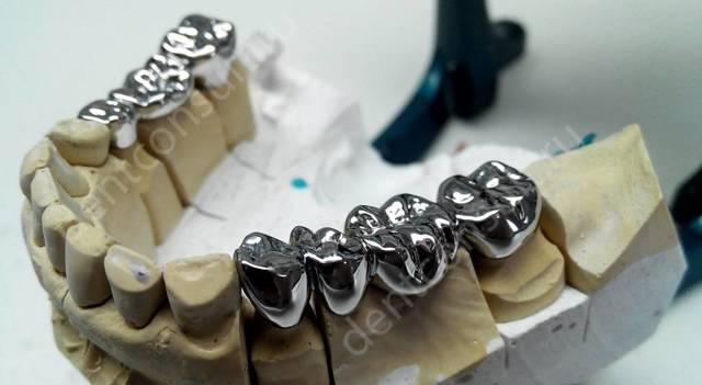 Протезирование зубов: кто занимается этим и каковы показания, а также как называется врач, который делает коронки, каким образом их вставляют и в чём состоит уход?