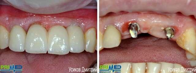 Десна после имплантации: сколько болит дней, каковы причины боли в месте вживления новых зубов, бывают ли патологии?
