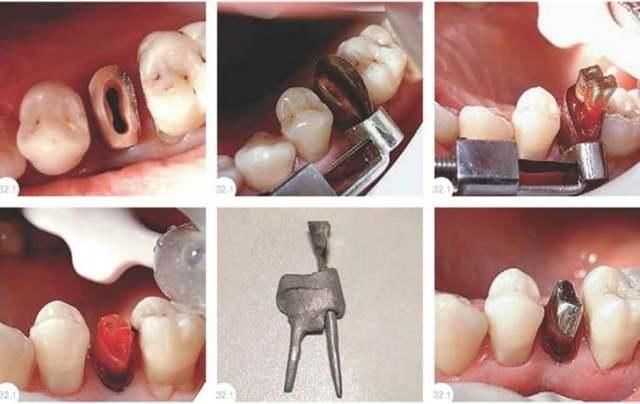 Материал для протезирования зубов: какой лучше и из чего изготавливают коронки, делают виниры, вкладки и иные виды ортодонтических конструкций, и цены