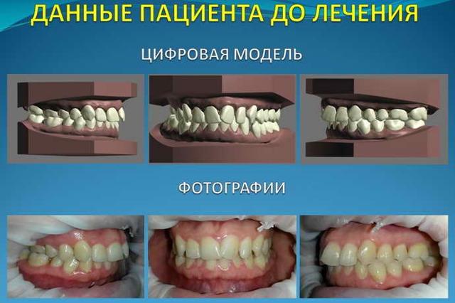 Ставить брекеты: какой врач их устанавливает и как он называется, кто нуждается в исправлении прикуса зубов, в чём особенности работы ортодонта, который лечит детей?