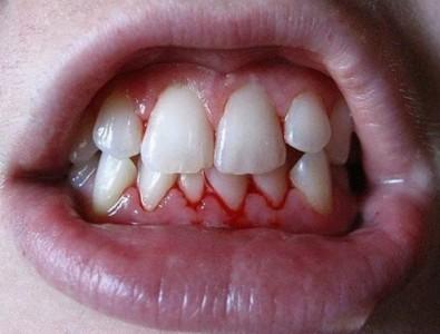 Чистка или отбеливание зубов: что лучше выбрать, чем отличаются процедуры, а также рекомендации стоматологов и возможные противопоказания