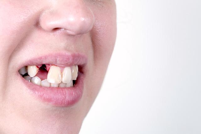 Что нужно для имплантации зубов: как подготовиться к операции и зачем это необходимо, как избежать боли?