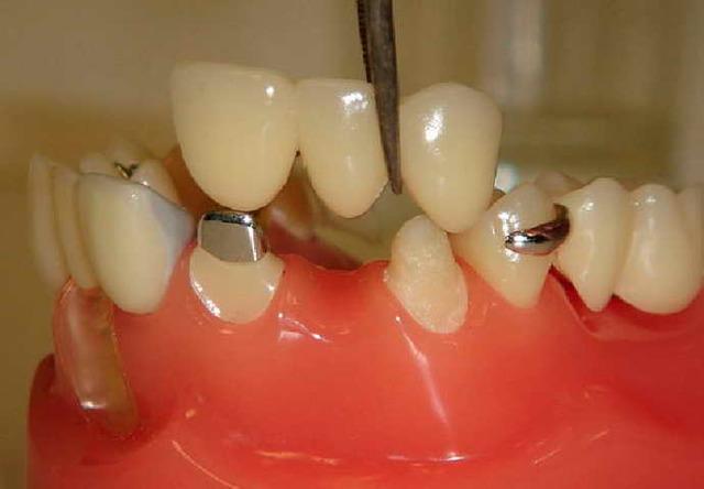 Виниры на зубы: пошаговая инструкция, как устанавливают, и на сколько единиц крепятся, как долго ощущается боль, как ухаживать?