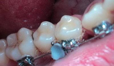 Что делать, если отклеился брекет-замок: основные причины, почему такое происходит, а также порядок действий, когда элемент отвалился на последнем зубе