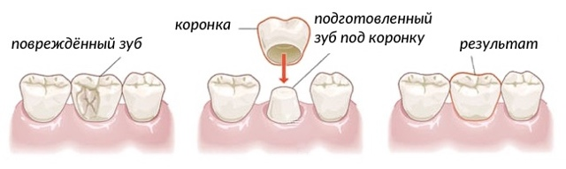 Коронки на зубы: какой врач ставит, как называется доктор, который делает протезы, а также виды конструкция и особенности их установки