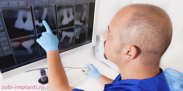 Какие анализы нужно сдать перед имплантацией зубов, с какой целью проводят диагностику?