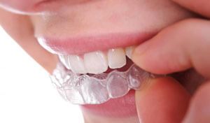 Сколько нужно носить брекеты ребёнку, чтоб исправить прикус зубов, и как долго надо ходить в металлических или иных взрослому, от чего зависит время исправления?