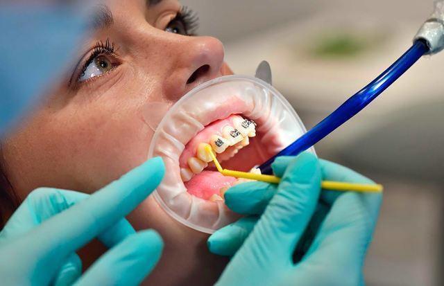 Как брекеты делают зубы ровными: каким образом устроена и работает система, как действует на клеточную ткань, что нужно знать?