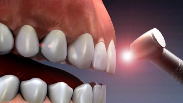 Как обтачивают зубы под коронки, больно ли это, для чего так делают, как проходит процедура?