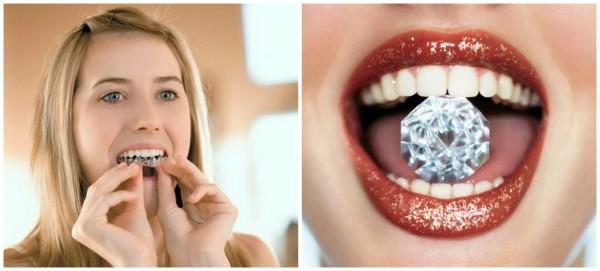 Какое отбеливание зубов лучше: какой способ выбрать, и особенности химического, ультразвукового, лазерного, механического и фотоосветления эмали