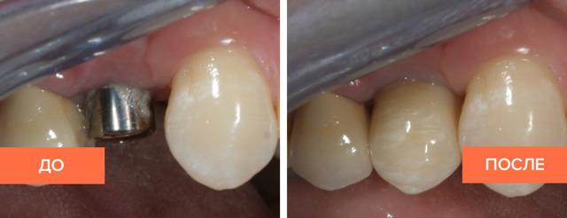 Как устанавливают импланты зубов: этапы, как проводится процесс для верхней и нижней челюсти, время, за которое должна проходить операция, анализы и противопоказания