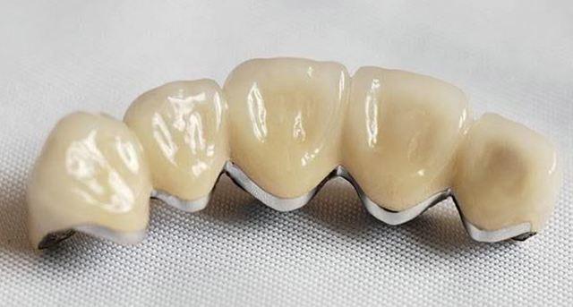 Коронки на зуб: в каких случаях ставят, когда можно одевать, как делаются, крепятся и устанавливаются из металлокерамики, и процесс, как нужно вставлять правильно