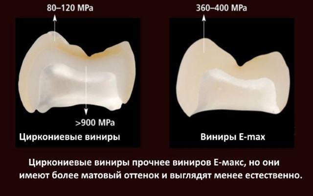 Виниры на зубах: сколько держатся, какие виды существуют, как долго они служат, как продлить срок эксплуатации?