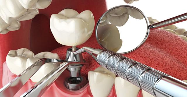 Имплантация зубов: что это такое, как делаются импланты в стоматологии, из чего, как они выглядят, как происходит этап подготовки, долго ли по времени устанавливают?