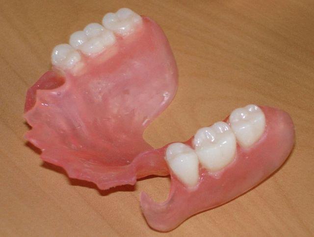 Какие протезы ставить, если нет зубов последних опорных или иных на верхней или нижней челюсти, можно ли сделать съемные, как крепятся?