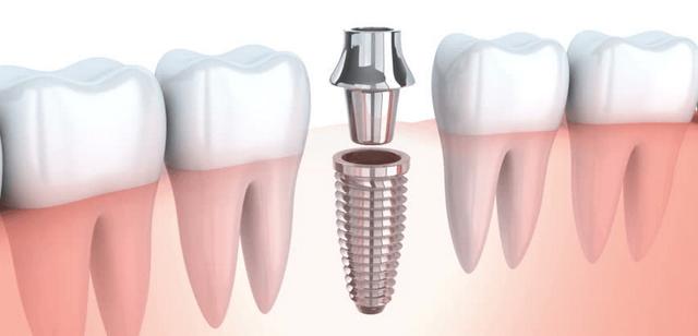 Имплантация зубов или съемный протез: что лучше и в чем разница, чем отличаются методы, каковы преимущества и недостатки бюгельных и иных?