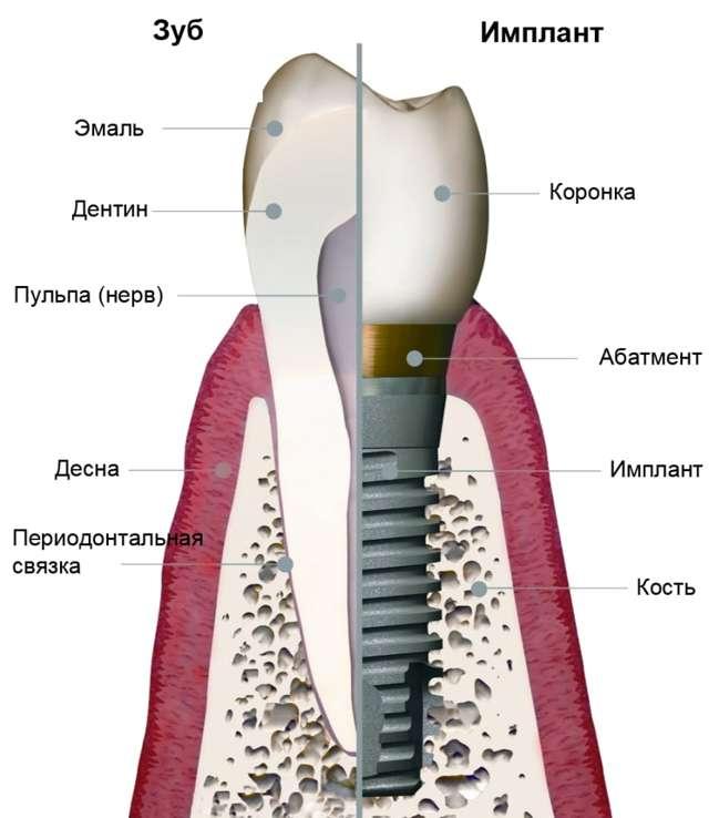 Импланты зубов: какие бывают, из чего состоят и как их ставят, а также варианты установки, планирование и методики процедуры