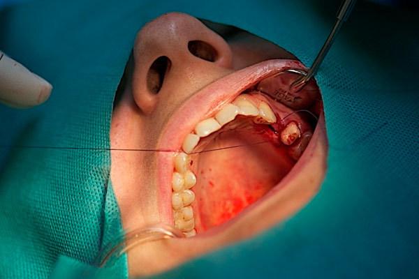 Чем опасны зубные импланты: противопоказания для имплантации, минусы процедуры, долгосрочные негативные последствия
