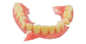 Сломался зубной протез: что делать, если пополам или иначе, почему такое случается и как быстро склеить конструкцию в домашних условиях, какие средства использовать?