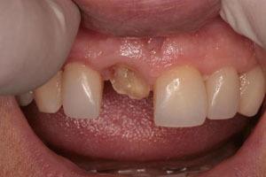 Коронка или наращивание зуба: что лучше, в чем суть методик, какие противопоказания, когда предпочтительно поставить протез, а в каких случаях выбрать реставрацию?