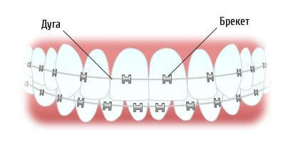 Лигатурные или безлигатурные: какие брекеты лучше, что у них за особенности, а также сравнительные характеристики и отличия