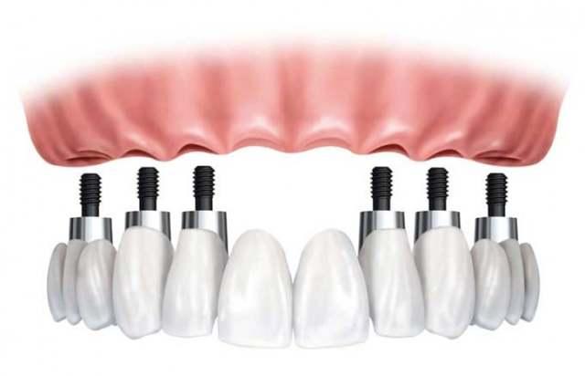 Что лучше — зубной мост или имплант: какую конструкцию выбрать на жевательные зубы и почему, а также для чего нужно заменять протезы и в чем их особенность?