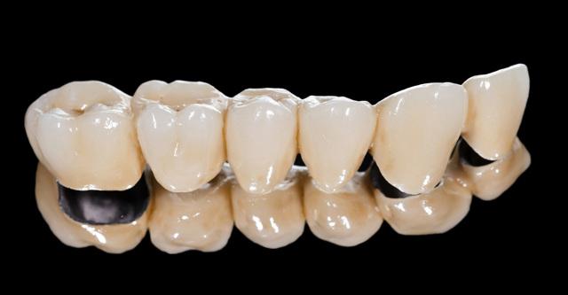 Какие коронки лучше поставить на жевательные зубы, и виды, их плюсы и минусы, нюансы процедуры