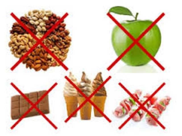 Металлические брекеты: список, что нельзя есть и делать, и какие продукты можно кушать при ношении, когда и чем рекомендовано чистить конструкцию?