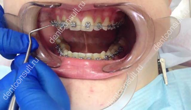 Снимают брекеты: сколько по времени с двух челюстей, как происходит процесс, больно ли, и каковы рекомедации после?