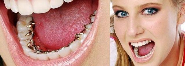 Брекеты для зубов: из чего состоят, из какого материала делают, как выглядят из металла и иные системы, какие лучше выбрать, и противопоказания к установке
