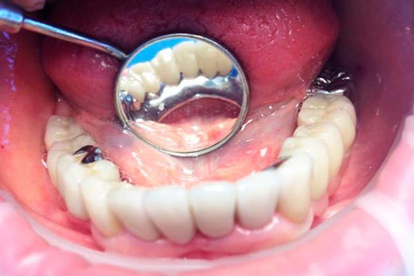 Что такое бюгельный протез зубов в стоматологии, как выглядит это приспособление на нижней и верхней челюсти, в чем плюсы и минусы?
