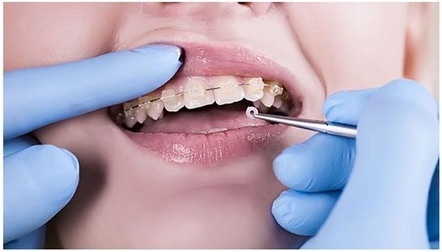 Брекеты: на сколько ставят, зачем, какие этапы включает процедура, какая ее длительность, и как часто потом нужно посещать ортодонта?