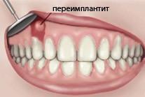 Сколько дней держится отек после имплантации зубов, как снять, каковы осложнения, и правила ухода и питания