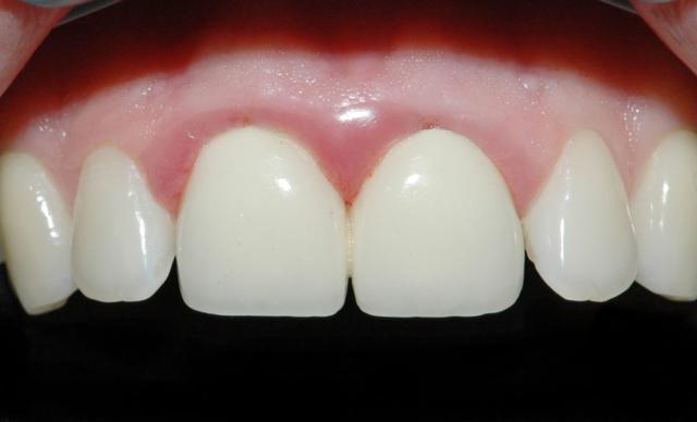 Воспаление под коронкой зуба: что делать, каковы причины, как лечить?