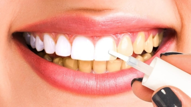 Отбеливание зубов: как делается дома и в стоматологии, что при этом происходит, а также последующий уход и противопоказания к процедуре