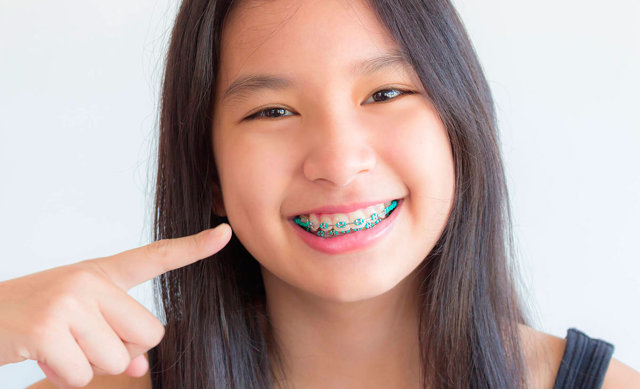 Брекеты: для чего нужны и зачем их надо ставить на зубы, как долго происходит лечение и как ухаживать за конструкцией?