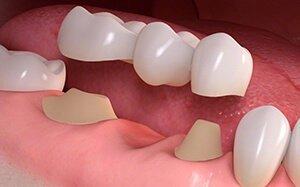 Зубные импланты: какие лучше ставить на переднюю часть и как выбрать самые подходящие для жевательной, каковы бывают способы крепления?