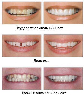 Что такое виниры на зубы: как они ставятся на передние, какие бывают, как делаются в клинике стоматологии и держатся, как их вставляют и зачем это нужно для улыбки?