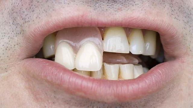 Коронки на передние зубы: какие лучше сделать, как и когда ставят, какие устанавливают на верхнюю челюсть, а также виды протезов и их свойства