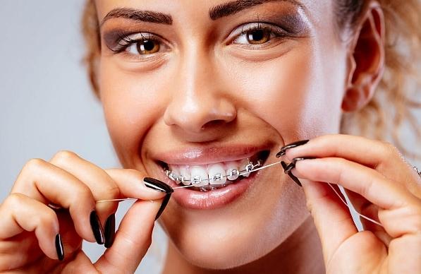 Как ухаживать за брекетами после установки: как чистить ортодонтичесую конструкцию, как проверять крепление на зубах, что есть?