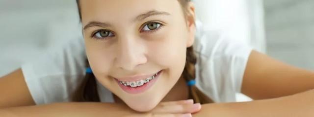 Брекеты: во сколько лет можно носить их для выравнивания зубов, до какого возраста лучше ставить ребенку — мальчику, девочке, когда рекомендуют подростку, взрослому?