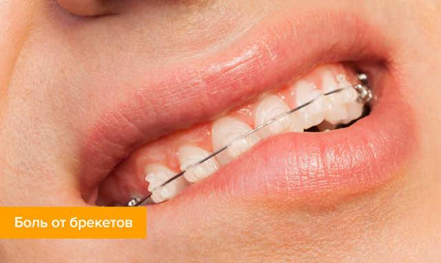 Как долго болят зубы после установки брекетов: сколько дней не проходит боль и почему, а также что делать, если вы не можете есть со скобами на верхнюю челюсть?