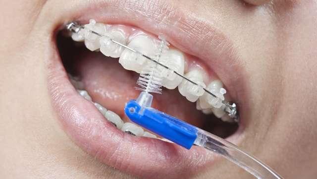 Как чистить брекеты зубной щеткой, ершиком, ирригатором и иным: чем правильно это делать, полоскать ли после еды и как ухаживать?