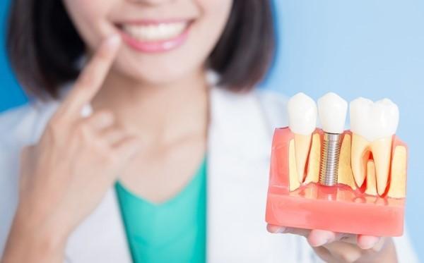 Что можно есть после имплантации зубов, когда начинать кушать после операции, зачем себя ограничивать?